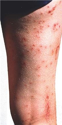allergisk reaktion utslag klåda